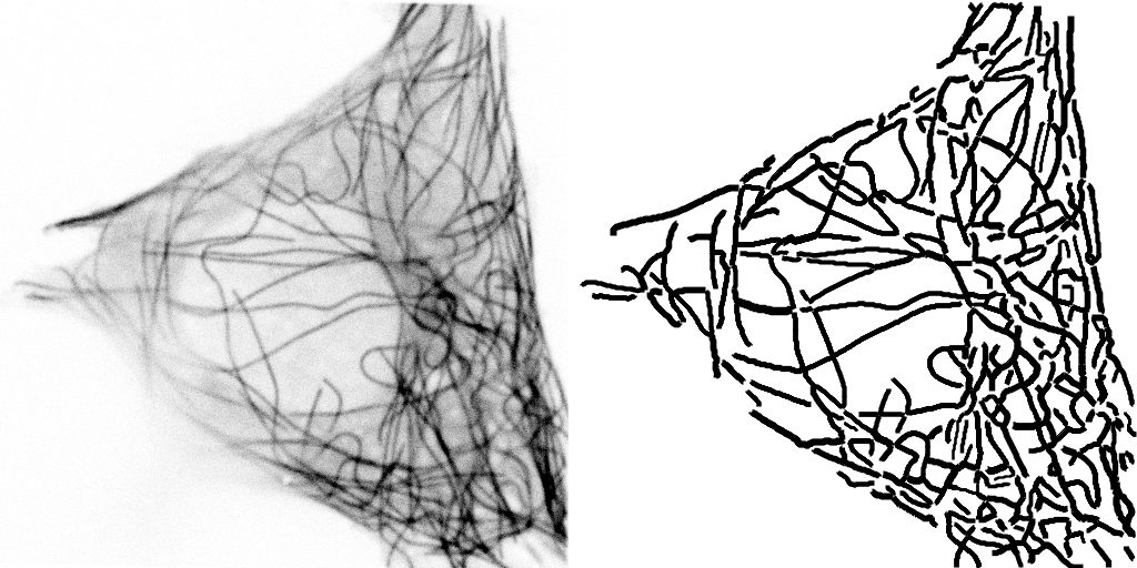 Microtubules (left) and result of tracing (right)
